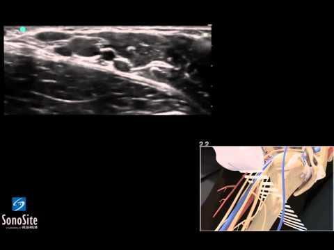 3D Lehrvideo: Ultraschallgestützte Axilläre regionale ...