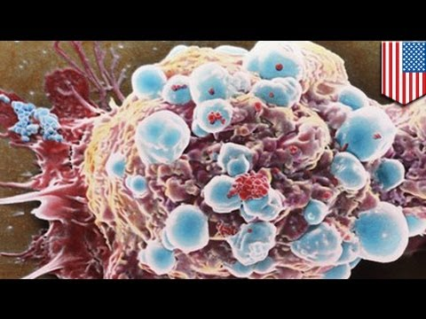 Killer 'sticky balls' may stop cancer spreading