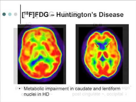 Advances in Alzheimer's Disease: Imaging and Biomarker Research