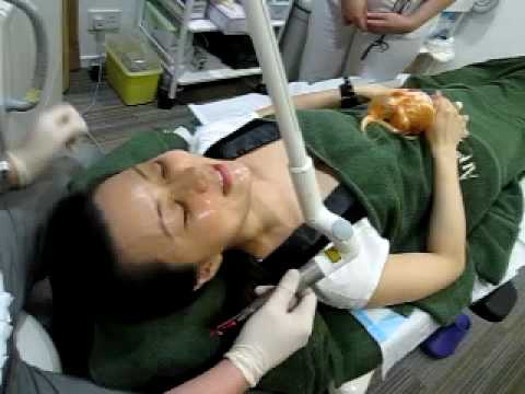 激光嫩頸療程 part  1  MICRO LASER PEEL/WEEKEND PEEL