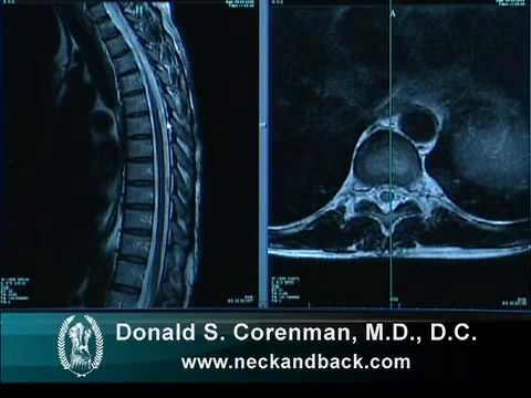 How To Read A Mri Of The Normal Thoracic Spine Mid Back