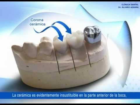 Clínica Dental Álvaro Azagra - Protesis Fija