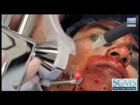 Hình ảnh trong video Los Angeles-Laser Tattoo Removal (Before/After