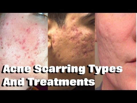 Severe Acne Scars Treatment HOW TO TREAT ACNE SCAR...