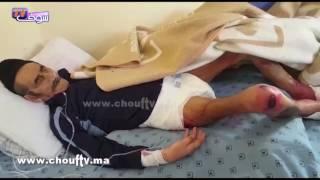 حالات مؤثرة لنزلاء خيرية تيط مليل..شوفو القمل و الدود و الوسخ بعد نقلهم إلى مستشفى سيدي عثمان |