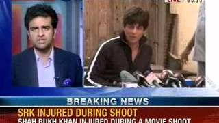 Breaking News: Shahrukh Khan injured during shoot of 'Happy New Year'