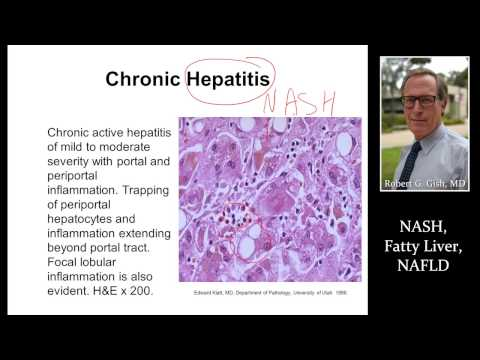 NASH (FATTY LIVER) by Dr. Robert Gish
