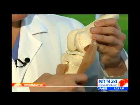 Falcao será intervenido quirúrgicamente en Portugal por lesión en el ligamento anterior cruzado
