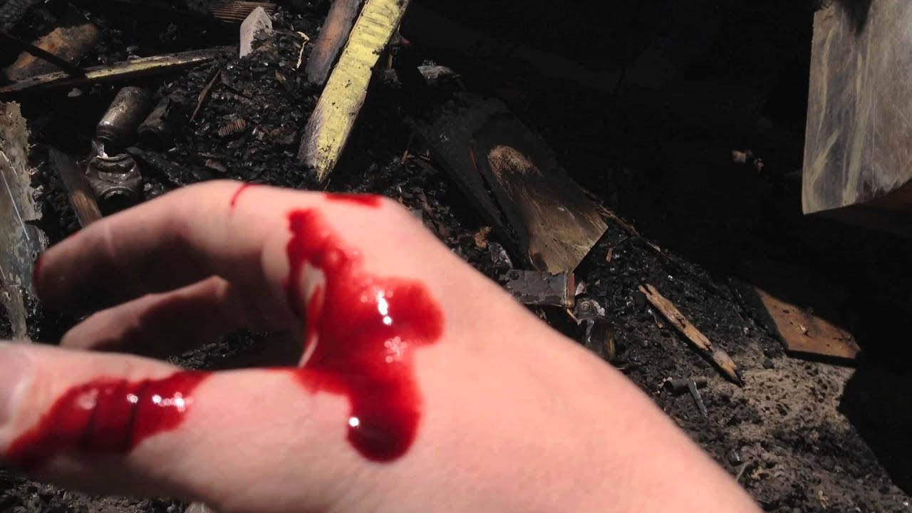 bad cut on finger how to stop bleeding