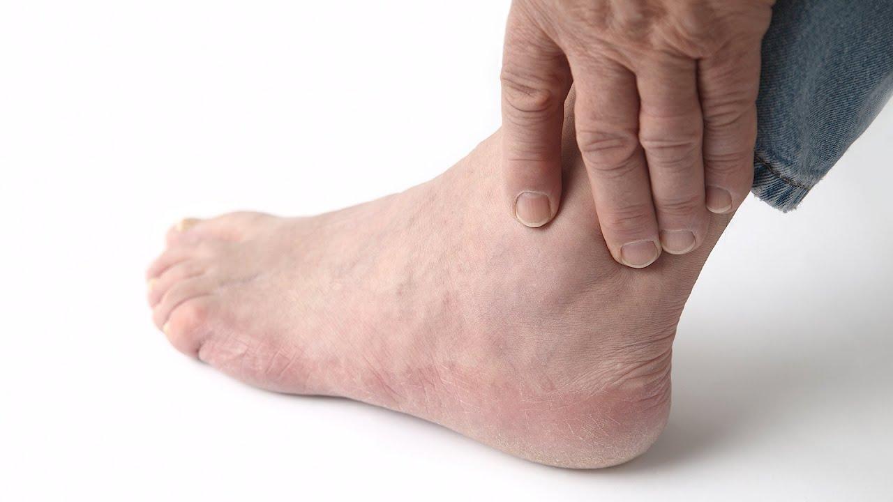 gout symptoms foot picture
