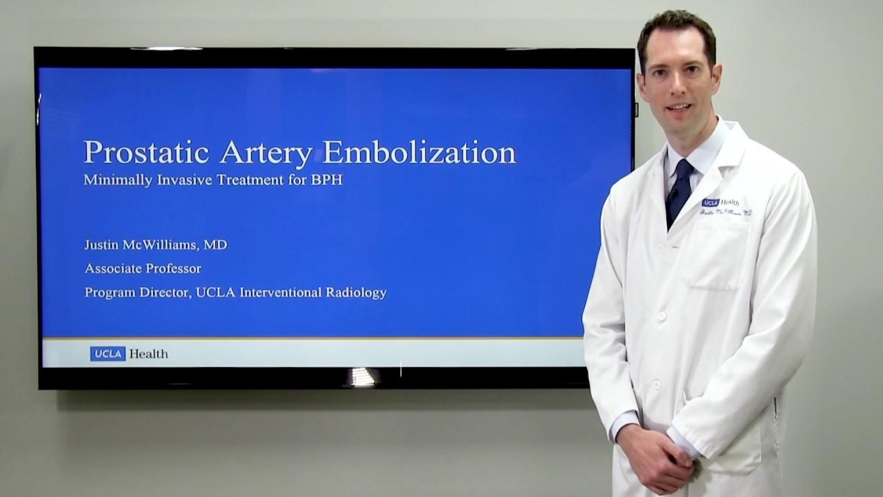 Prostatic Artery Embolization - Justin McWilliams, MD   UCLAMDChat