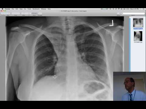 right upper lobe collapse due to mucous plug in an asthmatic