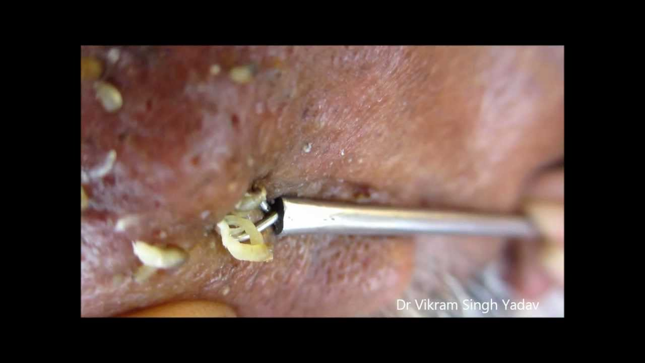 Junction nevus | definition of junction nevus by Medical ...