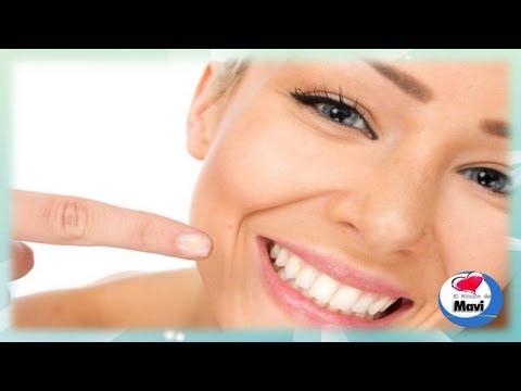 Remedios caseros y naturales para blanquear los dientes amarillos y manchados - Blanquear dientes