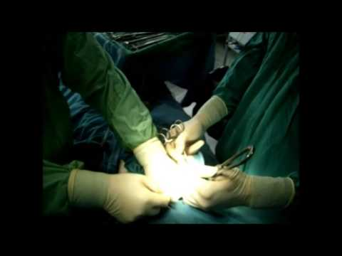 Laparotomy for cholecystitis  acuta gangrenosa perforativa.Cholecystectomy with TEA