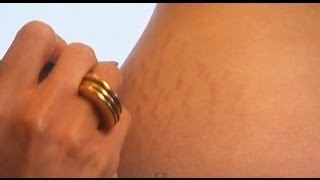 Stretch Marks How To Look Good Naked