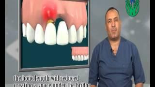 الفرق بين زراعة الأسنان و الجسور-  د حسام عاشور