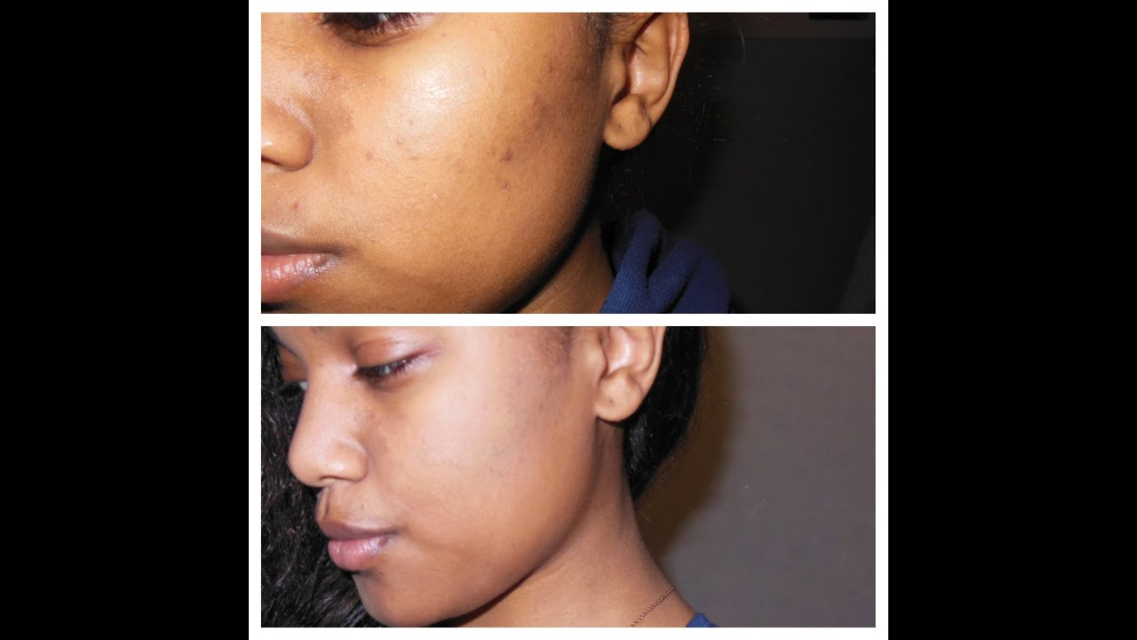 pommade de dalibour et acné zinc
