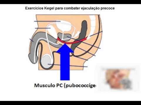 Tratar ejaculação precoce com exercícios Kegel