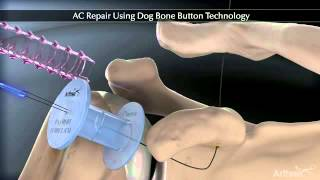 Acromio-clavicular Joint repair Using Arthrex Dog Bone Button