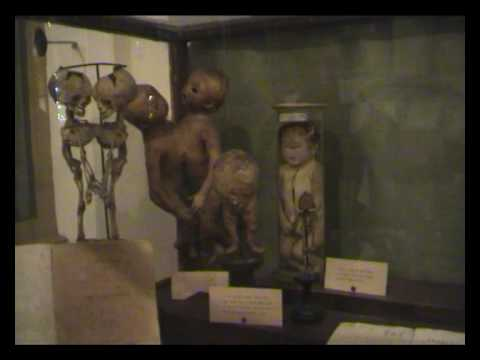 Strane Creature - Museo per la Storia dell'Università - Gemelli siamesi e Ciclope