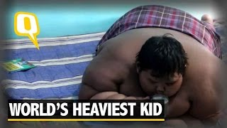 Shocker Alert: World's Heaviest Indonesian Kid Put On a Crash Diet