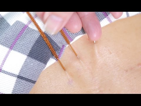 The Acupuncture Master. How to heal with incredibly long needles!