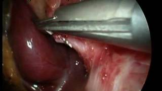 Colelitiasis Colecistectomia Laparoscopica