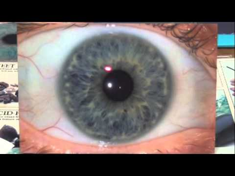 Introduction to Iridology and Eye Reviews