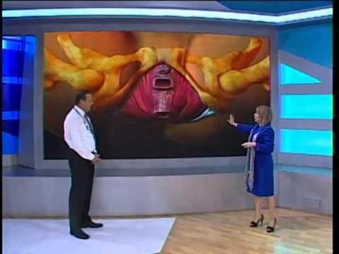 Dr. TV Perú (15-07-2013) - B1 - Tema del día: Prolapso