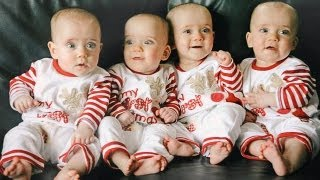 First Ever Identical Quadruplets - Amazing Pregnancy