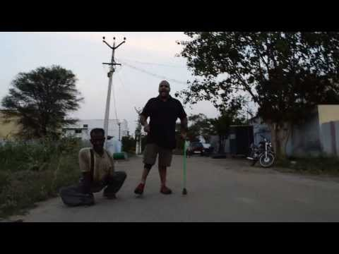 Polio Survivor Ramesh Ferris on India 3 Years Polio Free! January 13th, 2014