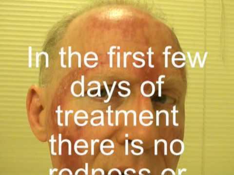 Pictures of Noncancerous, Precancerous and Cancerous ...