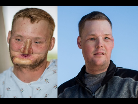 Successful Face Transplant Surgery