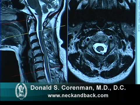 Understanding the MRI of Cervical Stenosis with Spinal Cord Injury | Spine Surgeon in Colorado