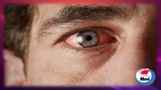 Remedios caseros para los ojos rojos e irritados