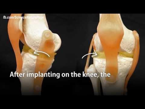 Cartilage-like hydrogel can repair damaged knees