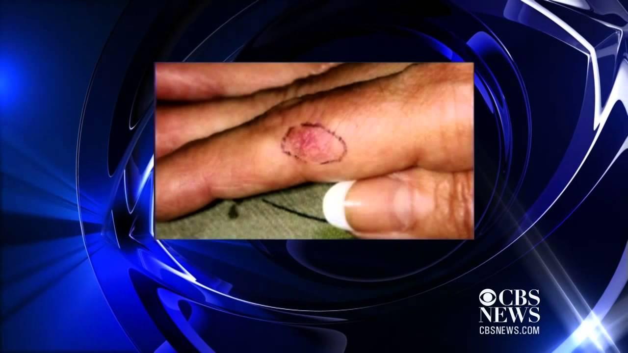 Gel manicure UV light poses possible cancer risk - YouTube