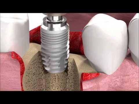 Jak prowadzony jest proces leczenia implantologicznego