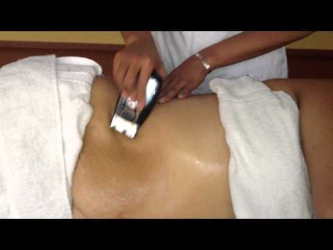 Como perder grasa abdominal sin liposucción ni cirugía Video2