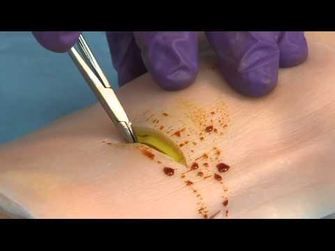 Venous Cutdown.mp4