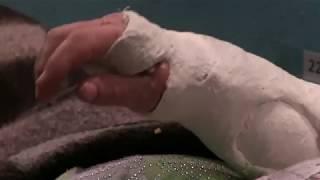 Новолуганське. Лікування поранених