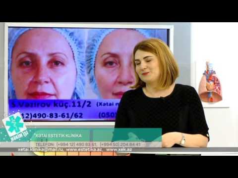 03 11 2016 Hekim ishi Hekim kosmetoloq Nergiz Ismayilova Xetai Estetik Klinika