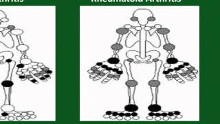 back pain due to high uric acid natural gout treatment in ayurveda gout treatment holistic medicine