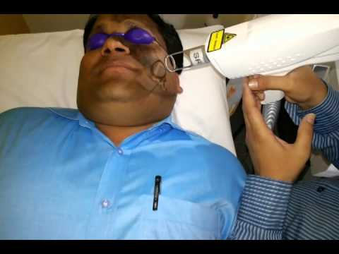 Removing Dark Spot using Nd yag laser