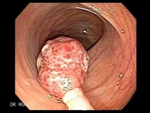 Endoscopic Polypectomy Polyp Of Descending Colon Youtube