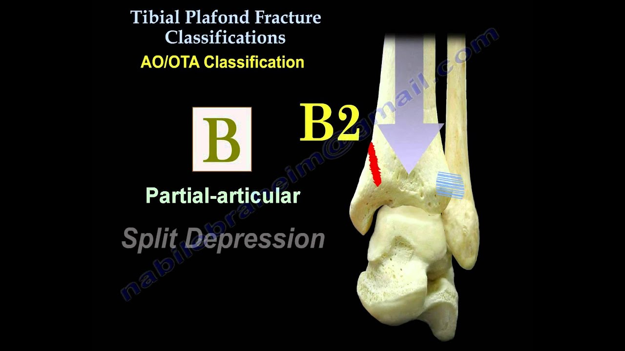 Pilon Fracture, Tibial Plafond Fracture - Everything You ...