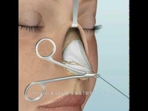 Burun Estetiği Ameliyatı, Açık Rinoplasti Videosu | Dr. Nazmi Bayçın