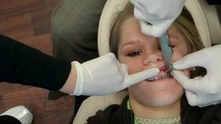 See TAD Placement At Wilson Orthodontics! Tel: 770-536