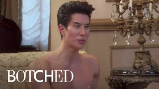 Human Ken Doll Looks Fit, But Is He? | Botched | E! view on break.com tube online.